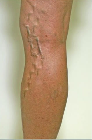 what are varicose veins:
