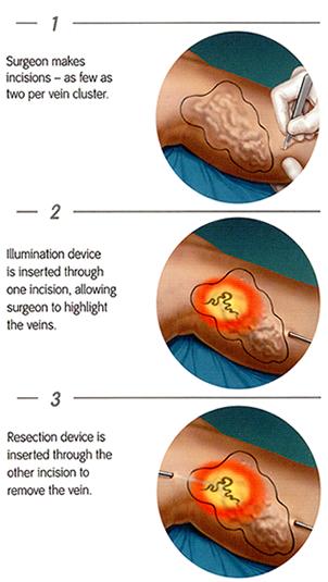 vnus procedure side effects